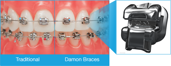 Damon Braces from Naborowski Orthodontics
